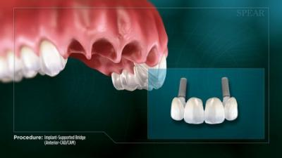 Implant supported bridge anterior