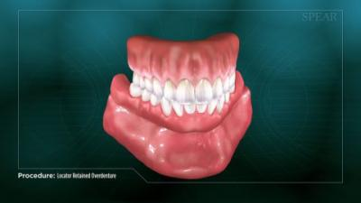 A teeth retainer on a green background