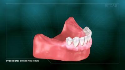 Removable Partial Dentures
