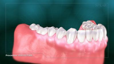 lower row of teeth